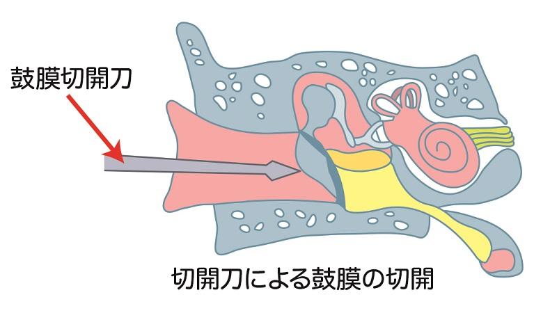 鼓膜切開術(外来)