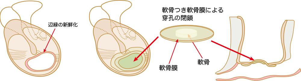 鼓膜形成術(日帰り手術も可能 )