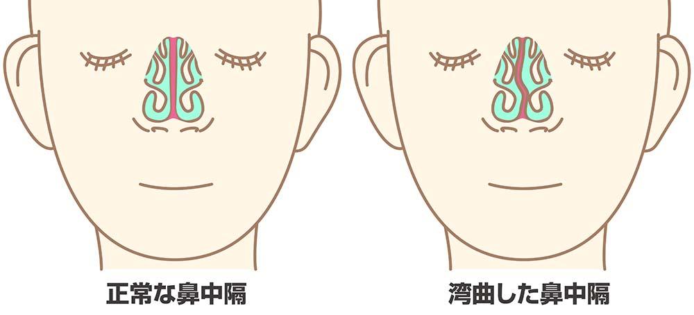 鼻中隔弯曲症の様子