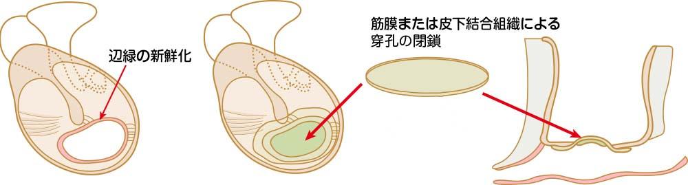 大阪で慢性中耳炎の手術なら老木医院